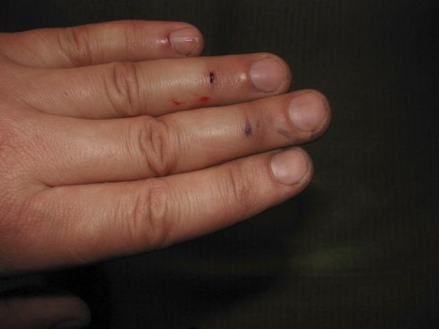 Как сделать так чтобы выросли ногти